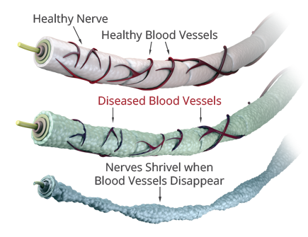 Reverse Peripheral Neuropathy Damage NOW - Begin With A